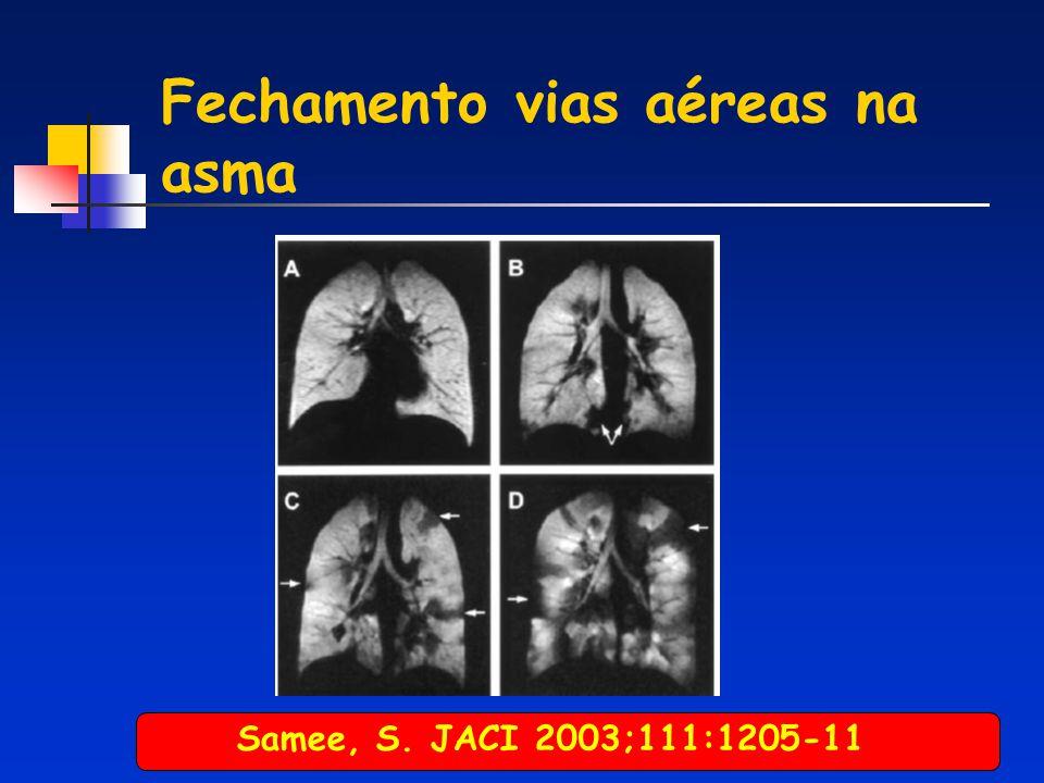 Fechamento vias aéreas na asma