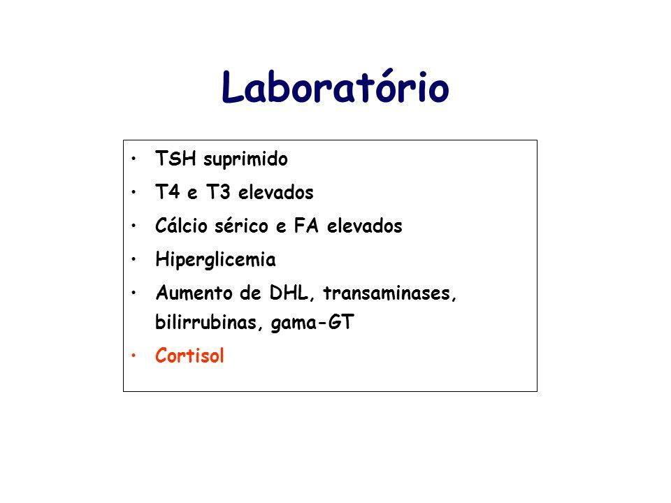 Laboratório TSH suprimido T4 e T3 elevados Cálcio sérico e FA elevados