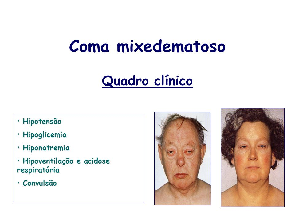 Coma mixedematoso Quadro clínico Hipotensão Hipoglicemia Hiponatremia