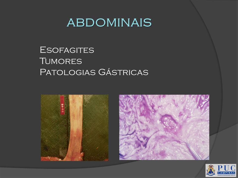 ABDOMINAIS Esofagites Tumores Patologias Gástricas