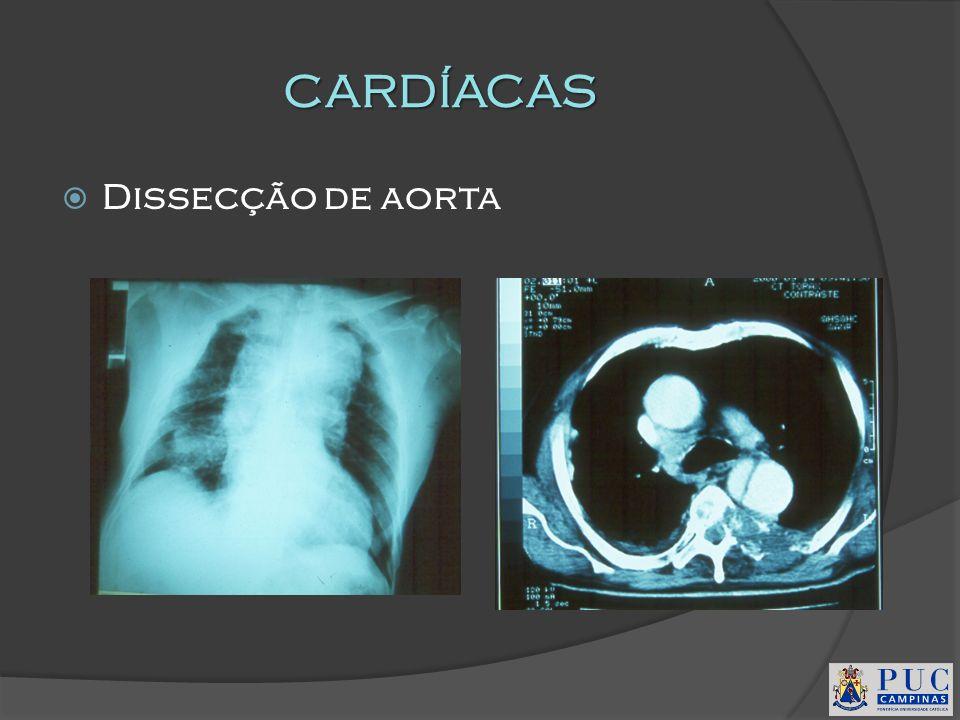 CARDÍACAS Dissecção de aorta