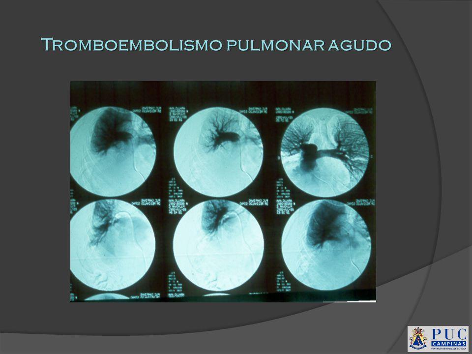 Tromboembolismo pulmonar agudo
