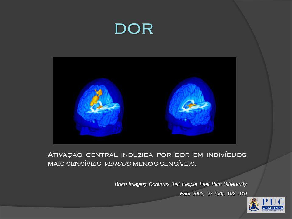 dor Ativação central induzida por dor em indivíduos mais sensíveis versus menos sensíveis. Brain Imaging Confirms that People Feel Pain Differently.
