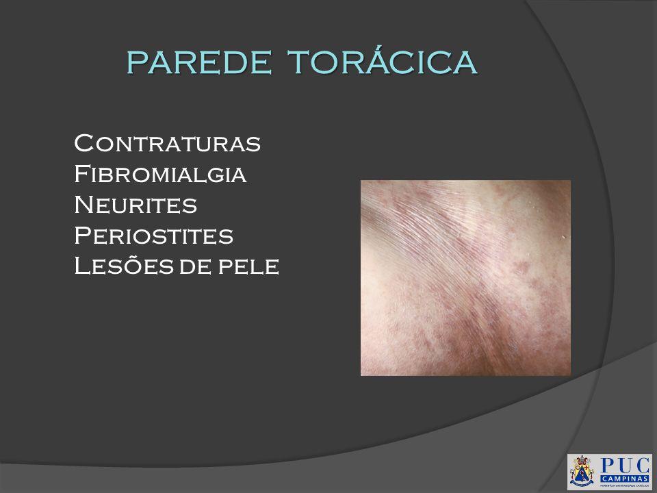 PAREDE TORÁCICA Contraturas Fibromialgia Neurites Periostites
