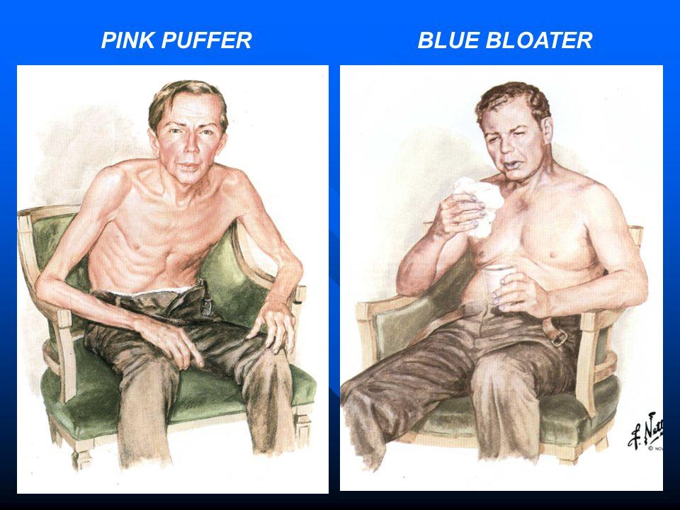 PINK PUFFER BLUE BLOATER