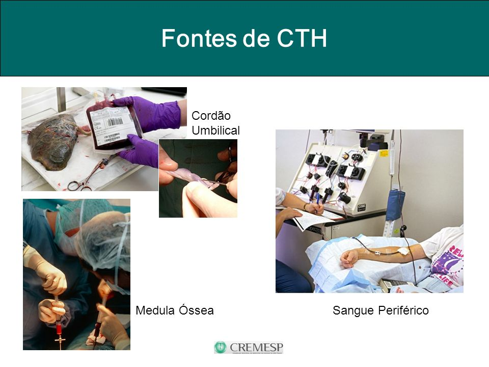 Fontes de CTH Sangue Periférico Cordão Umbilical Medula Óssea