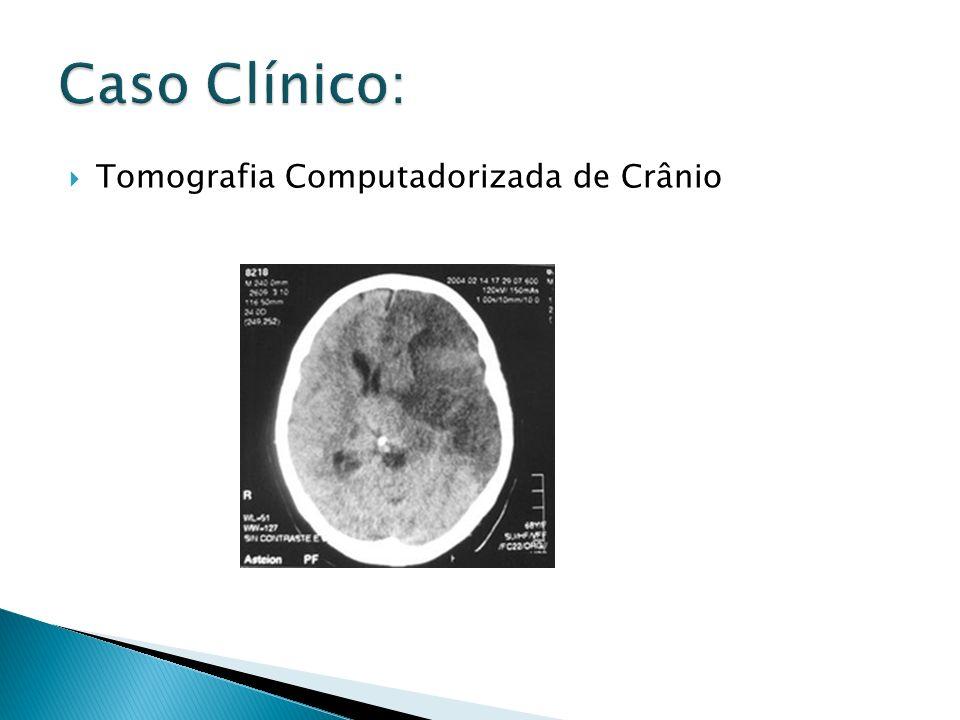 Caso Clínico: Tomografia Computadorizada de Crânio