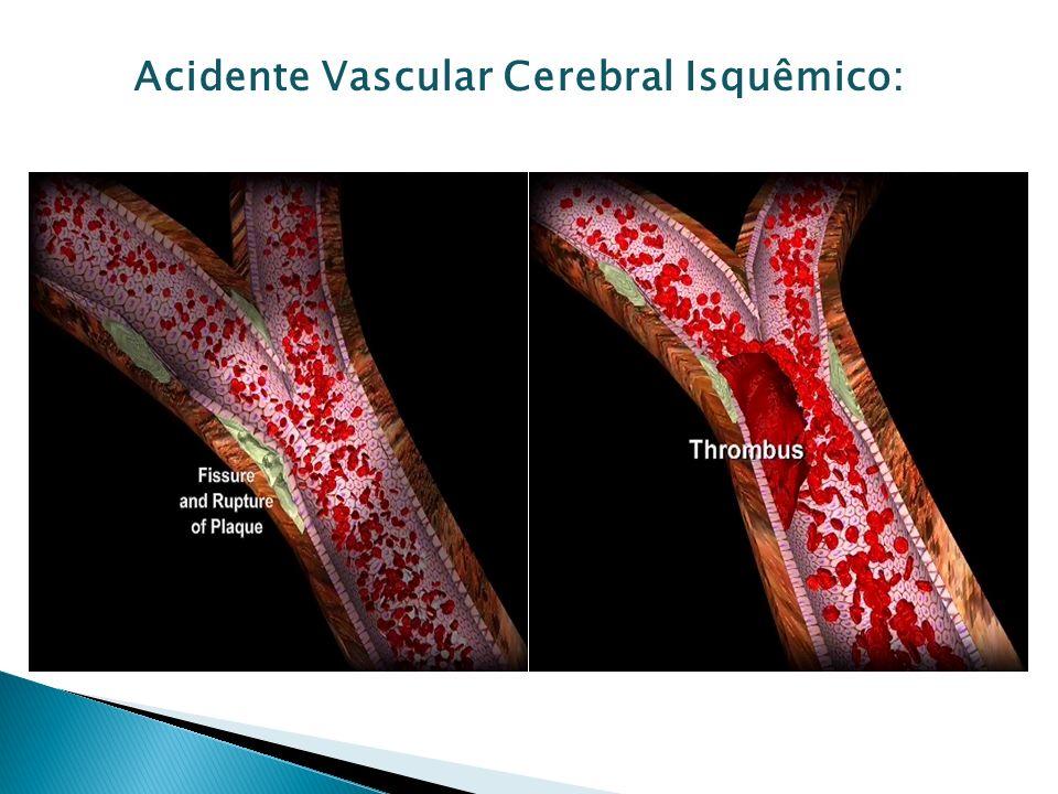 Acidente Vascular Cerebral Isquêmico: