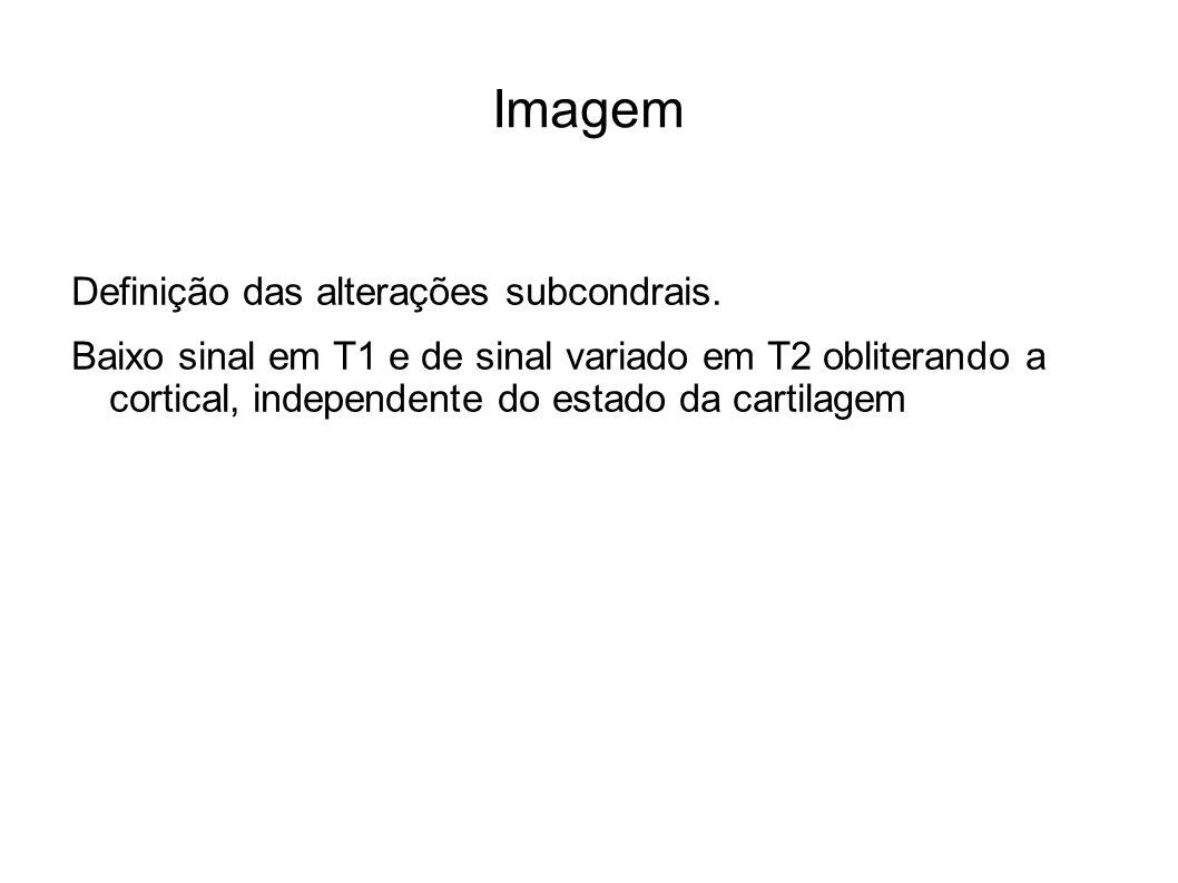 Imagem Definição das alterações subcondrais.