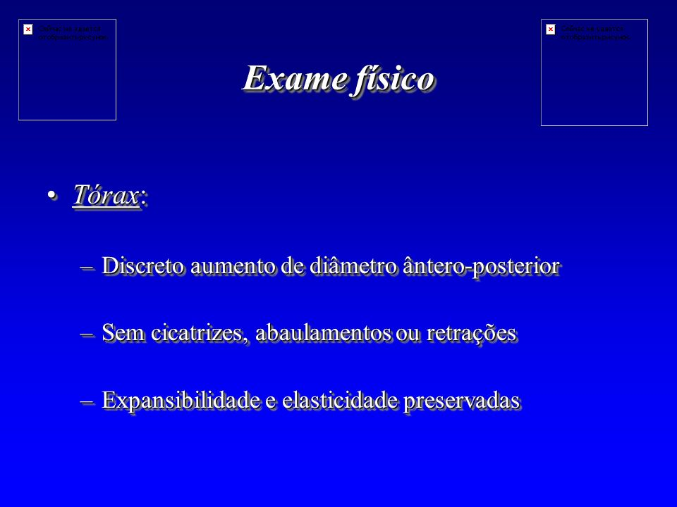 Exame físico Tórax: Discreto aumento de diâmetro ântero-posterior