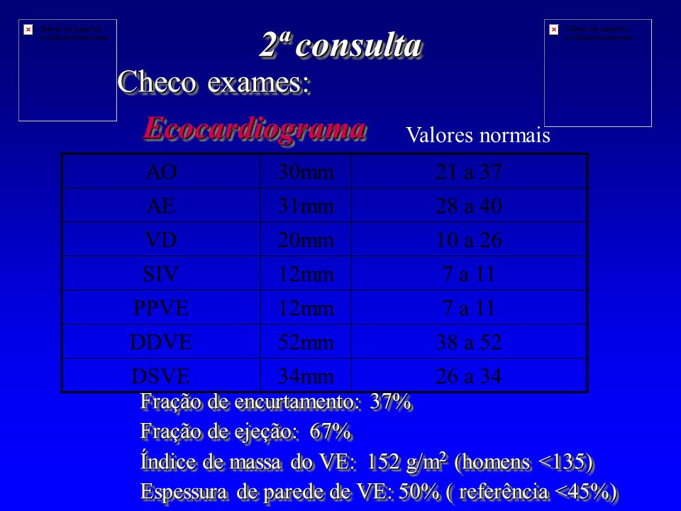 2ª consulta Checo exames: Ecocardiograma Valores normais AO 30mm
