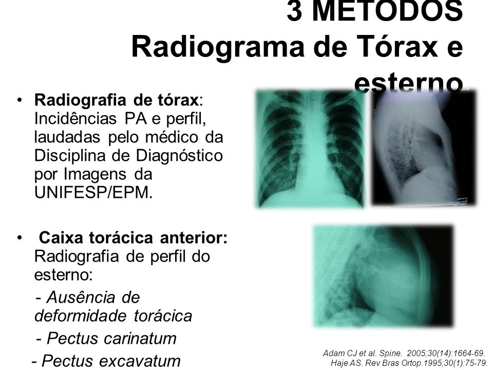 3 MÉTODOS Radiograma de Tórax e esterno