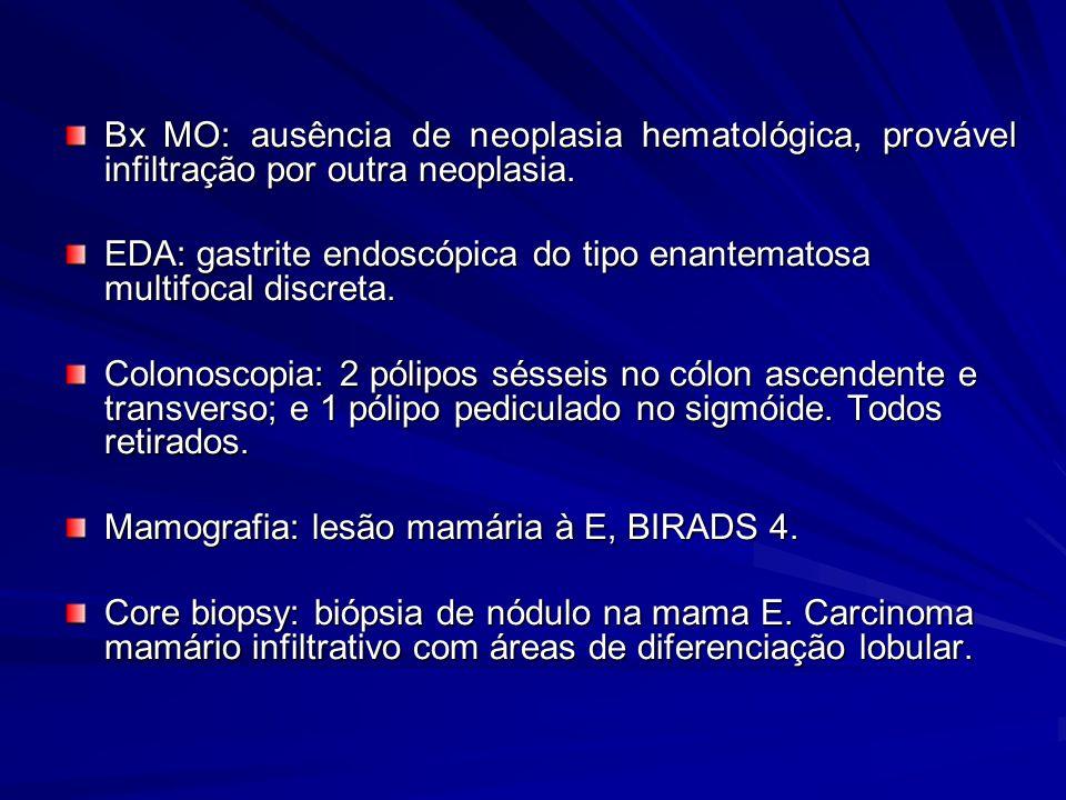 Bx MO: ausência de neoplasia hematológica, provável infiltração por outra neoplasia.