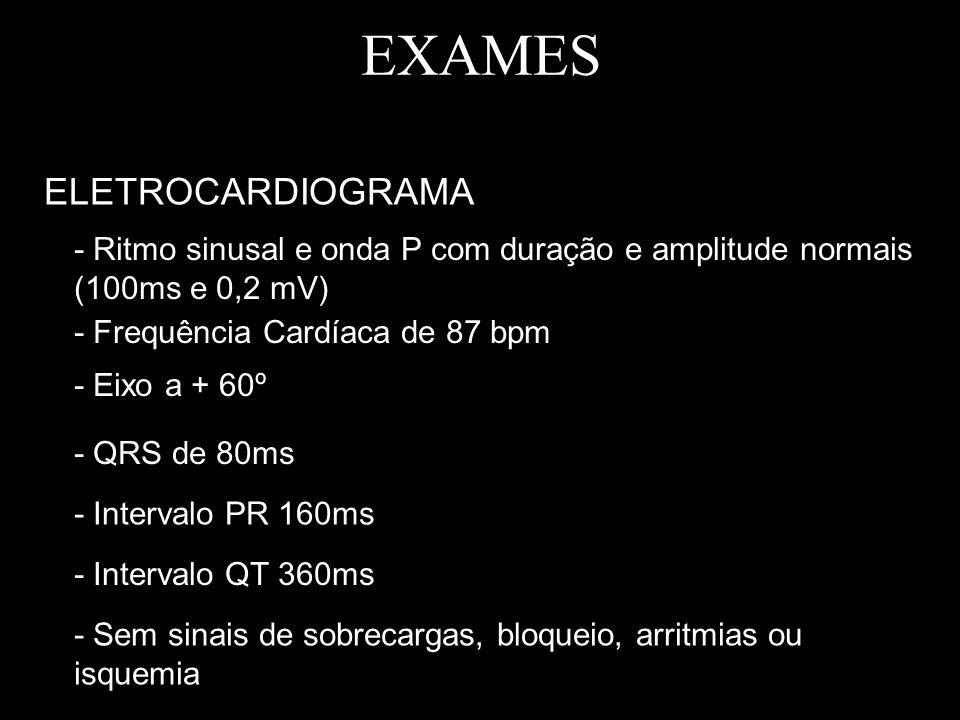 EXAMES ELETROCARDIOGRAMA