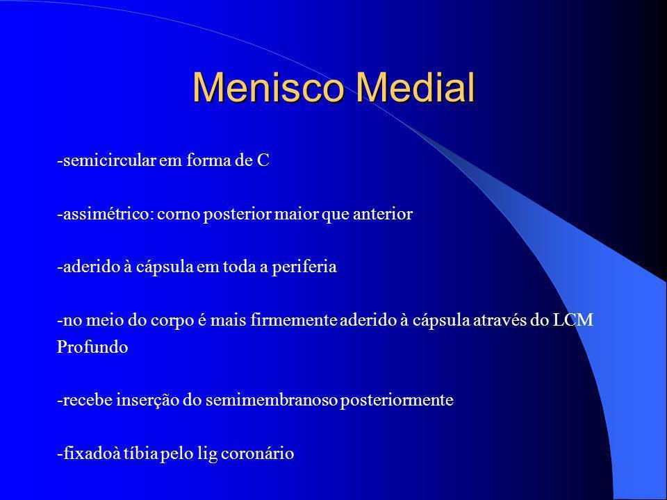 Menisco Medial -semicircular em forma de C