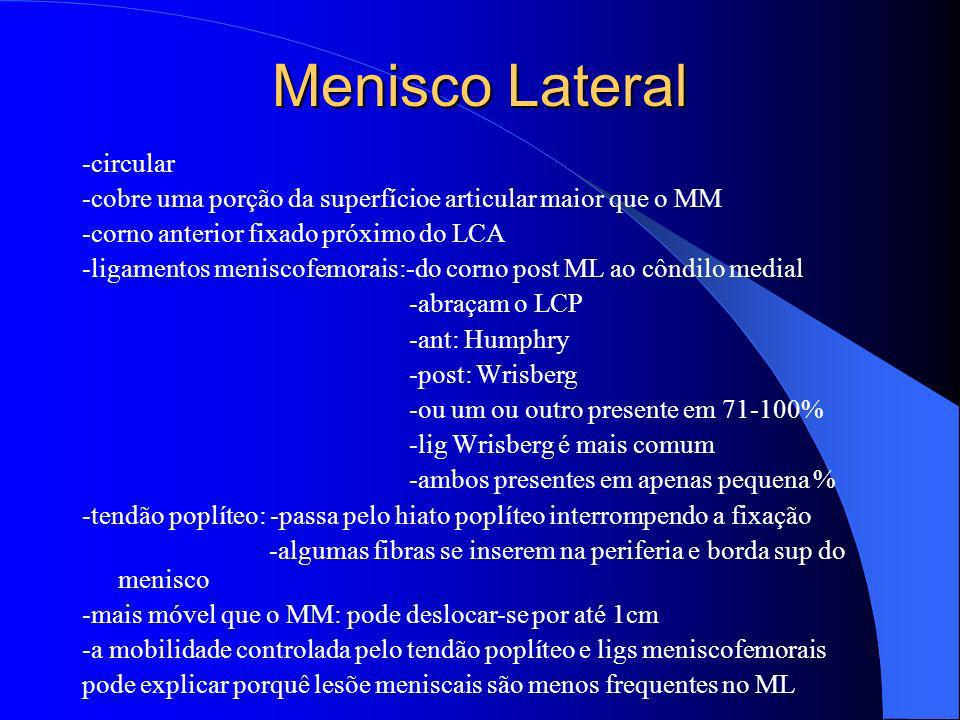 Menisco Lateral -circular