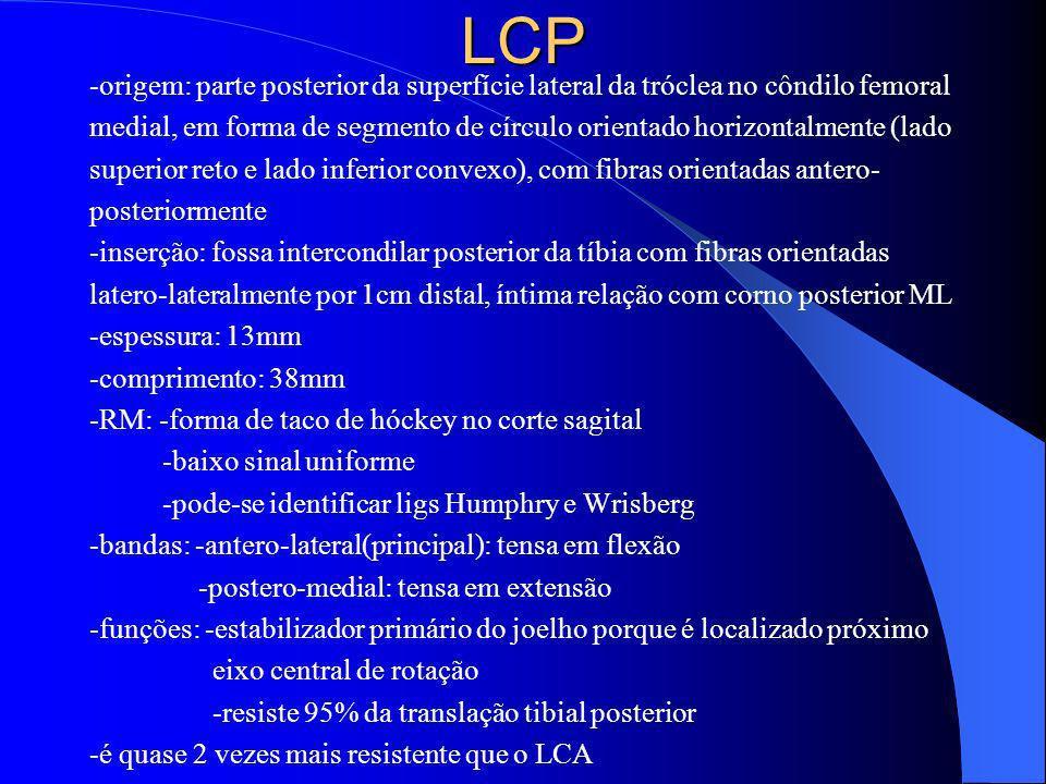 LCP -origem: parte posterior da superfície lateral da tróclea no côndilo femoral.