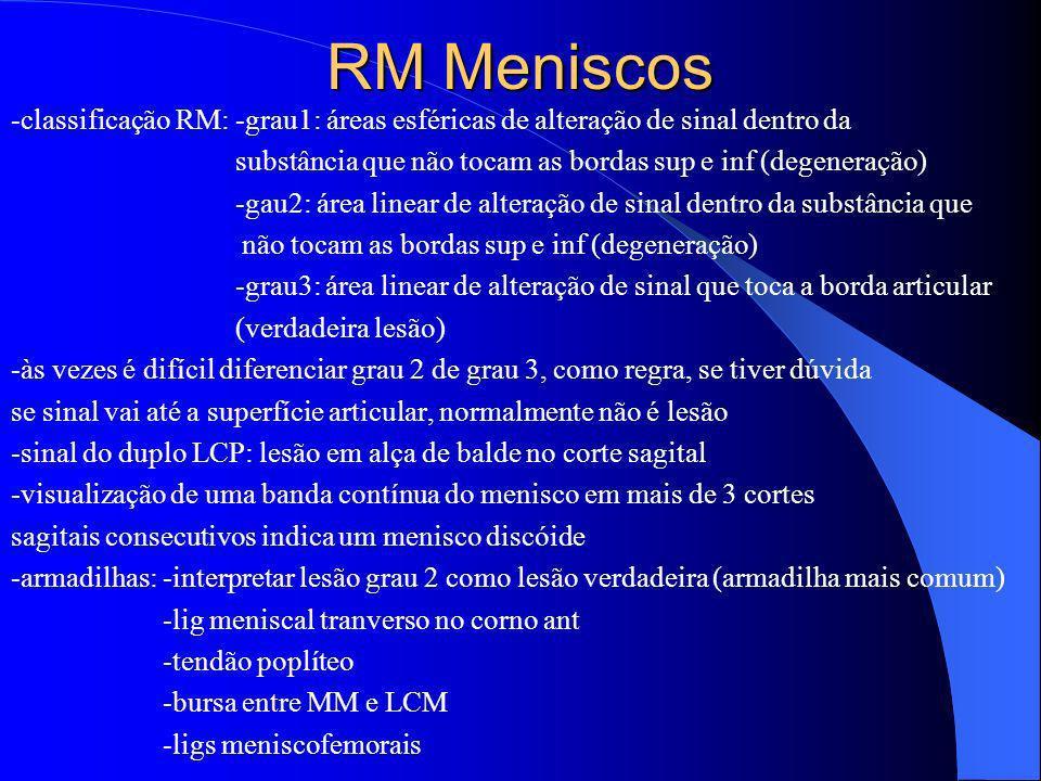 RM Meniscos -classificação RM: -grau1: áreas esféricas de alteração de sinal dentro da. substância que não tocam as bordas sup e inf (degeneração)