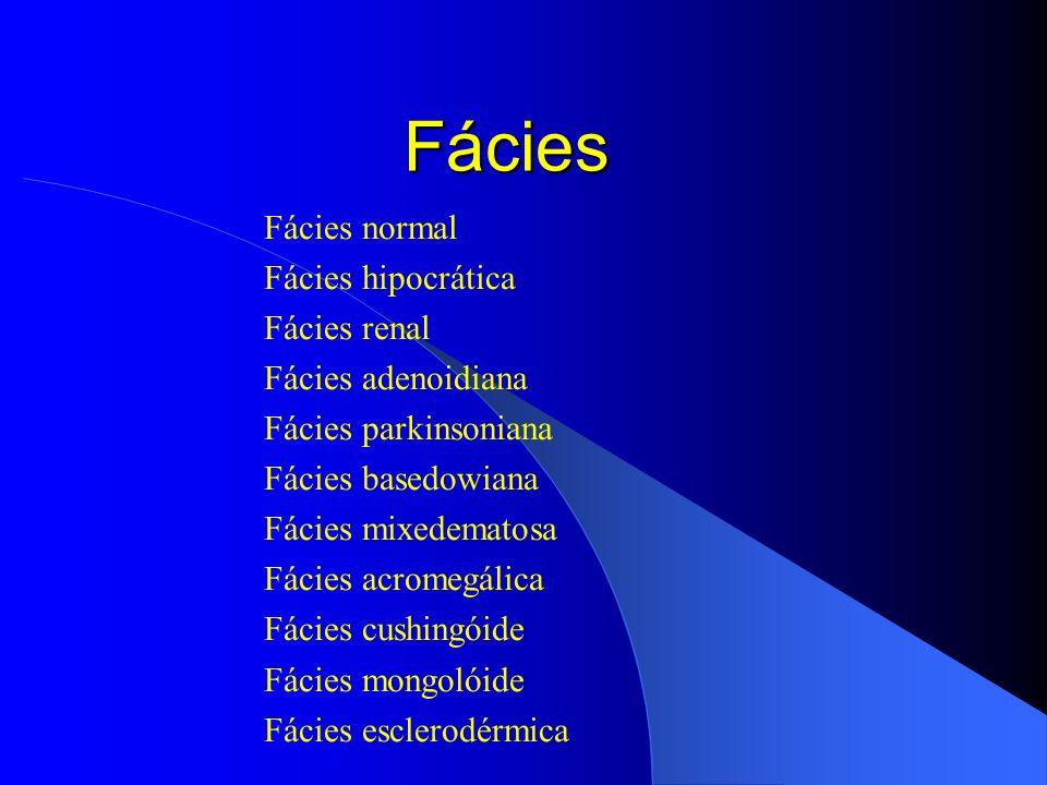 Fácies Fácies normal Fácies hipocrática Fácies renal