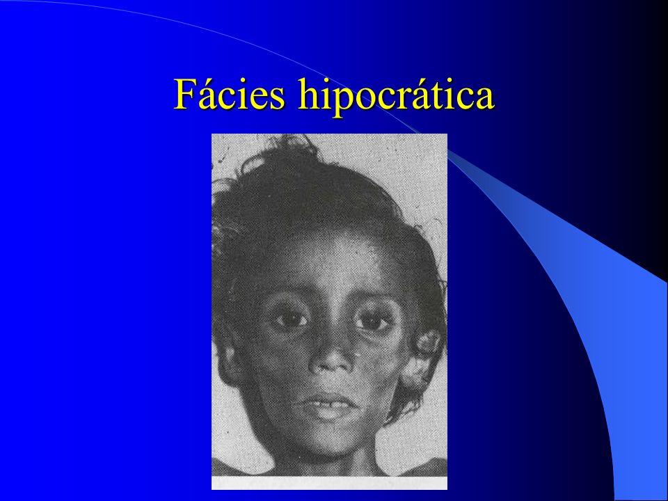 Fácies hipocrática