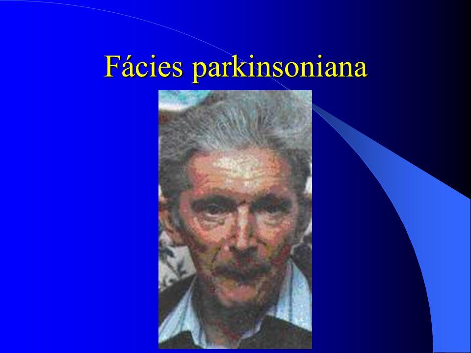 Fácies parkinsoniana