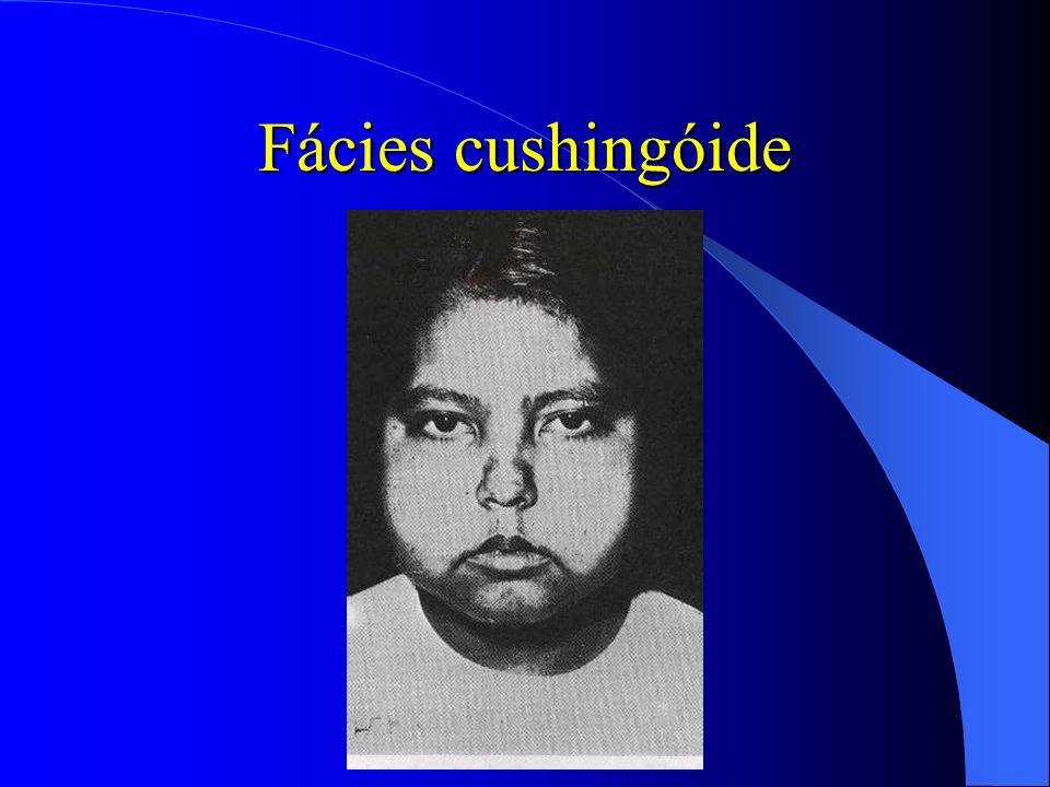 Fácies cushingóide