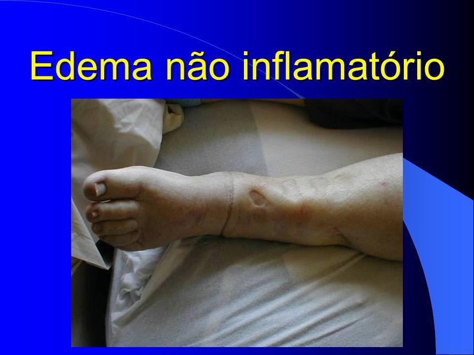 Edema não inflamatório