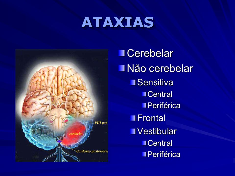 ATAXIAS Cerebelar Não cerebelar Sensitiva Frontal Vestibular Central