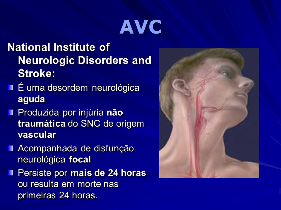 AVC National Institute of Neurologic Disorders and Stroke: