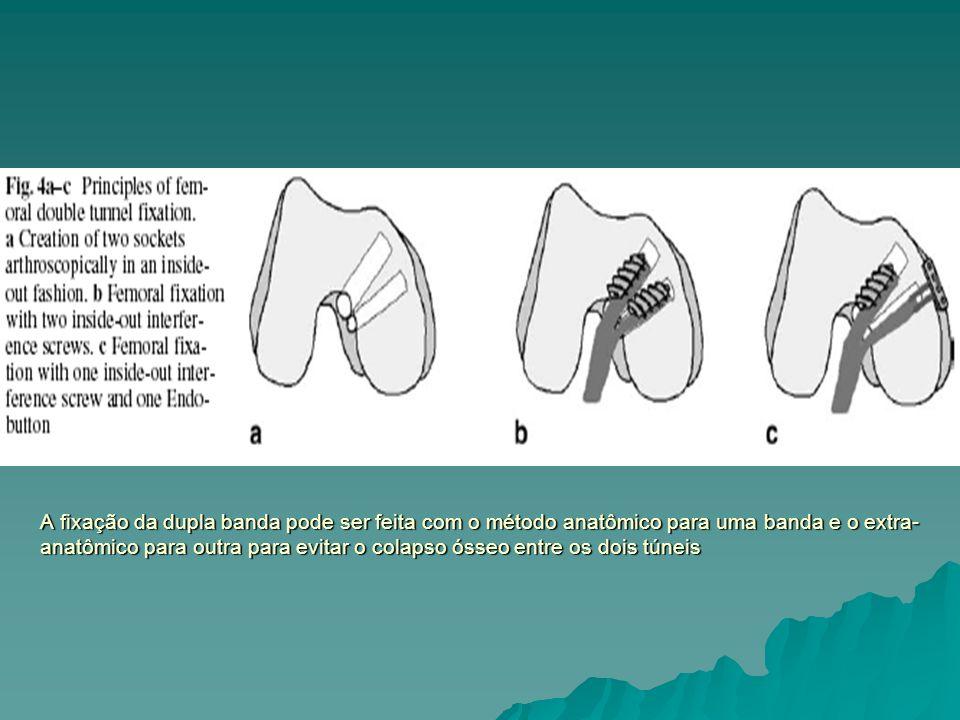 A fixação da dupla banda pode ser feita com o método anatômico para uma banda e o extra-anatômico para outra para evitar o colapso ósseo entre os dois túneis