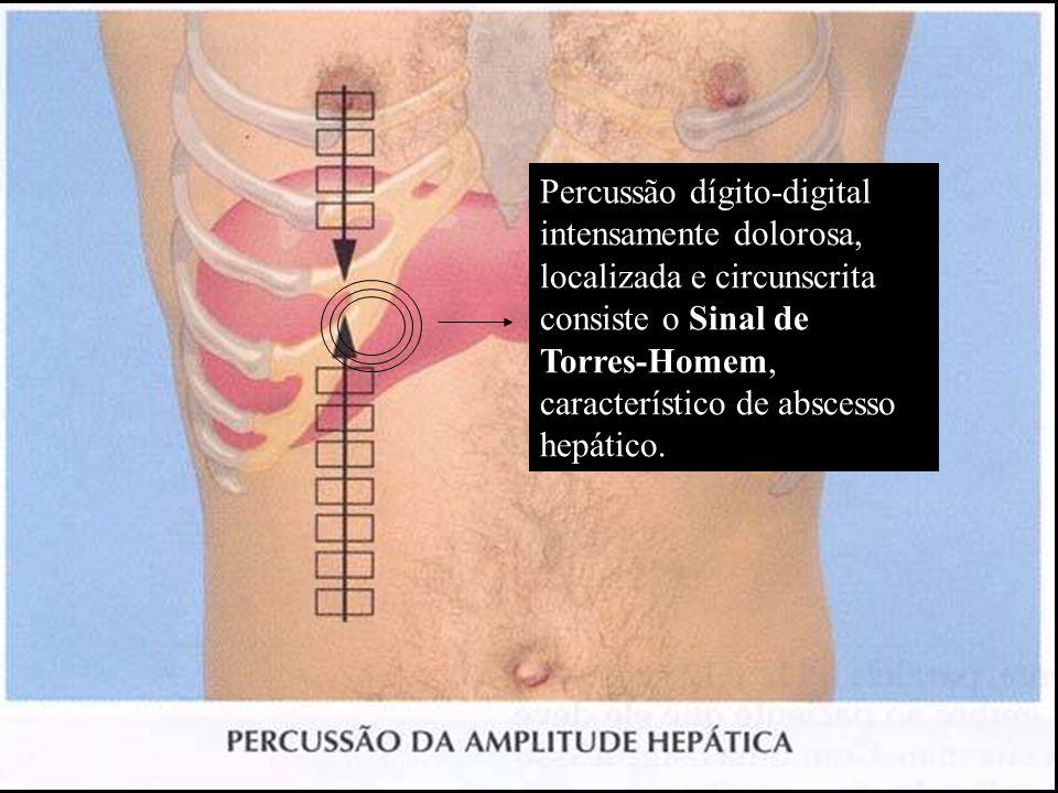Percussão dígito-digital intensamente dolorosa, localizada e circunscrita consiste o Sinal de Torres-Homem, característico de abscesso hepático.