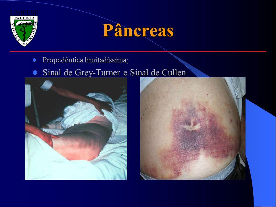 Pâncreas Sinal de Grey-Turner e Sinal de Cullen