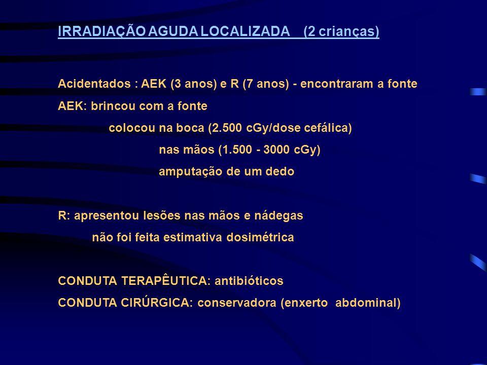 IRRADIAÇÃO AGUDA LOCALIZADA (2 crianças)