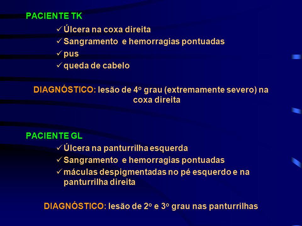 DIAGNÓSTICO: lesão de 4o grau (extremamente severo) na coxa direita