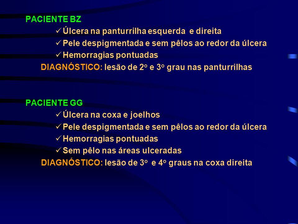 DIAGNÓSTICO: lesão de 2o e 3o grau nas panturrilhas