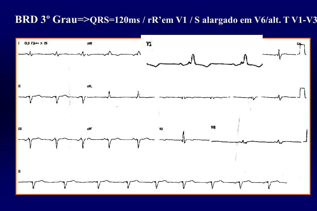 BRD 3º Grau=>QRS=120ms / rR'em V1 / S alargado em V6/alt. T V1-V3