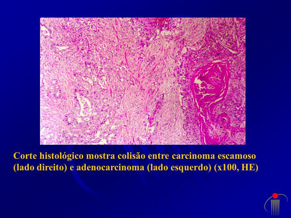 Corte histológico mostra colisão entre carcinoma escamoso (lado direito) e adenocarcinoma (lado esquerdo) (x100, HE)