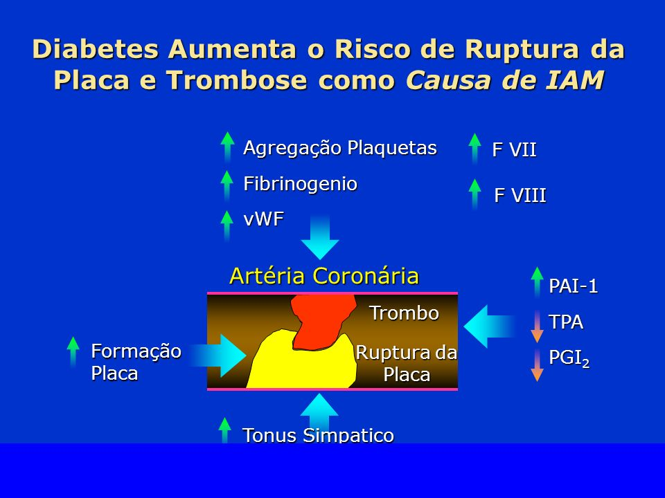 Diabetes Aumenta o Risco de Ruptura da Placa e Trombose como Causa de IAM