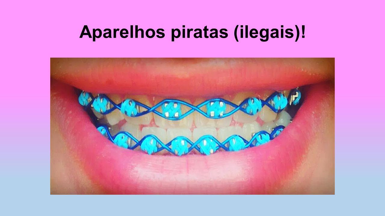 Aparelhos piratas (ilegais)!
