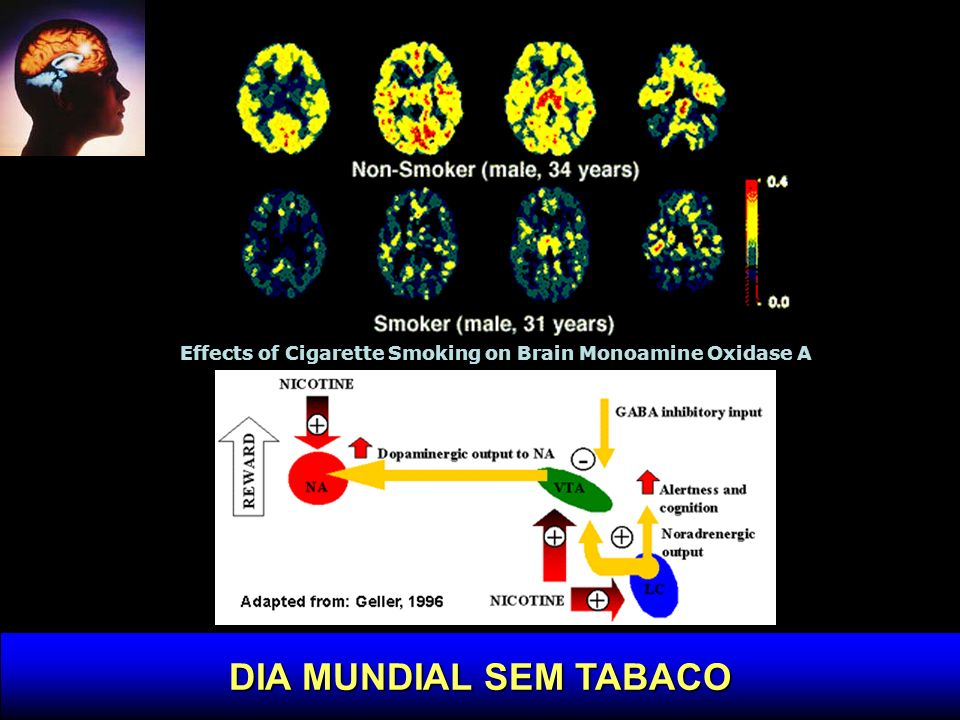 Effects of Cigarette Smoking on Brain Monoamine Oxidase A
