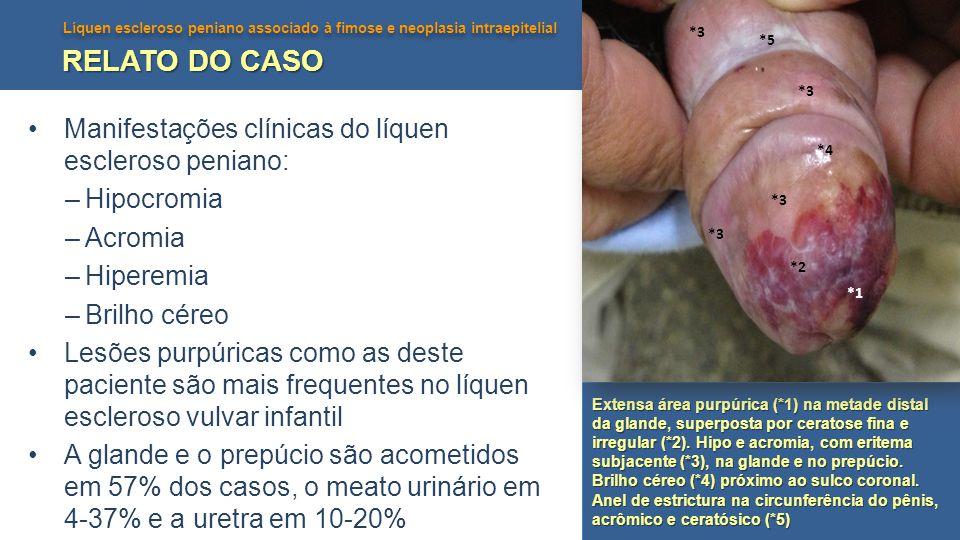 RELATO DO CASO Manifestações clínicas do líquen escleroso peniano:
