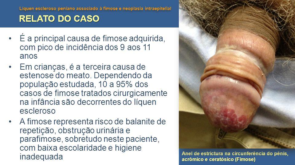 RELATO DO CASO É a principal causa de fimose adquirida, com pico de incidência dos 9 aos 11 anos.