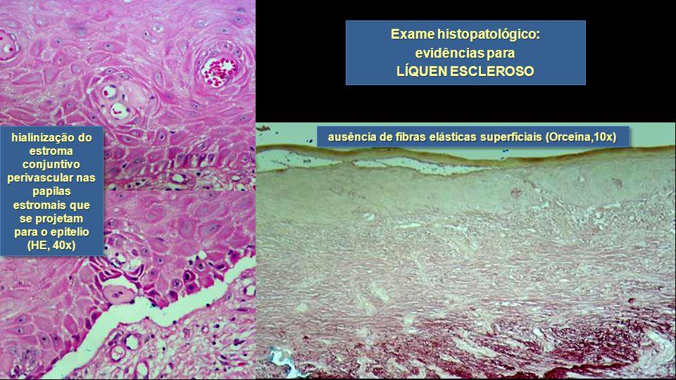 Exame histopatológico: evidências para LÍQUEN ESCLEROSO