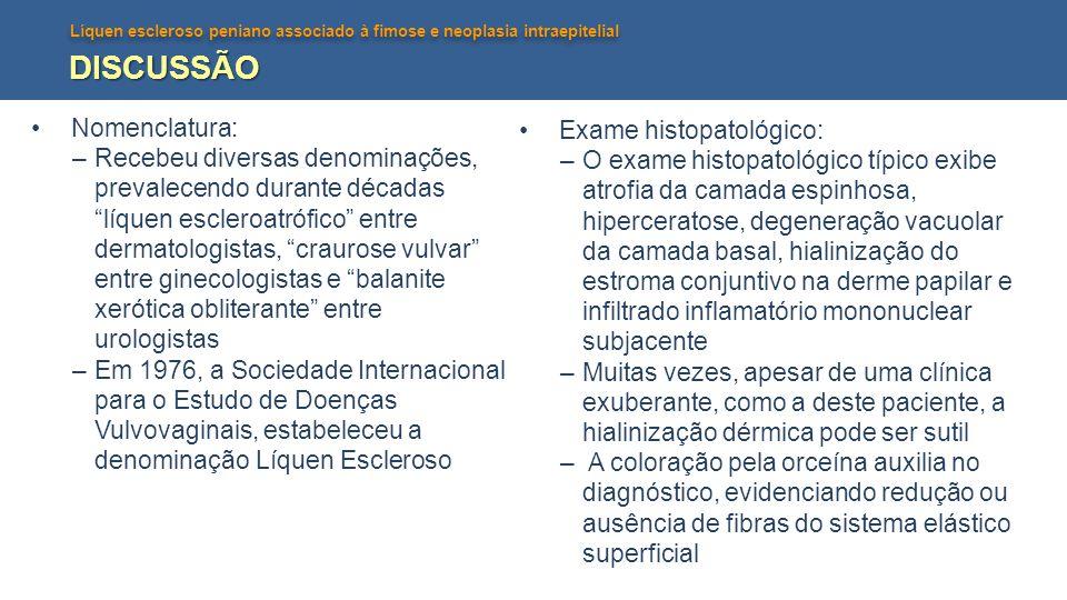 DISCUSSÃO Nomenclatura: Exame histopatológico: