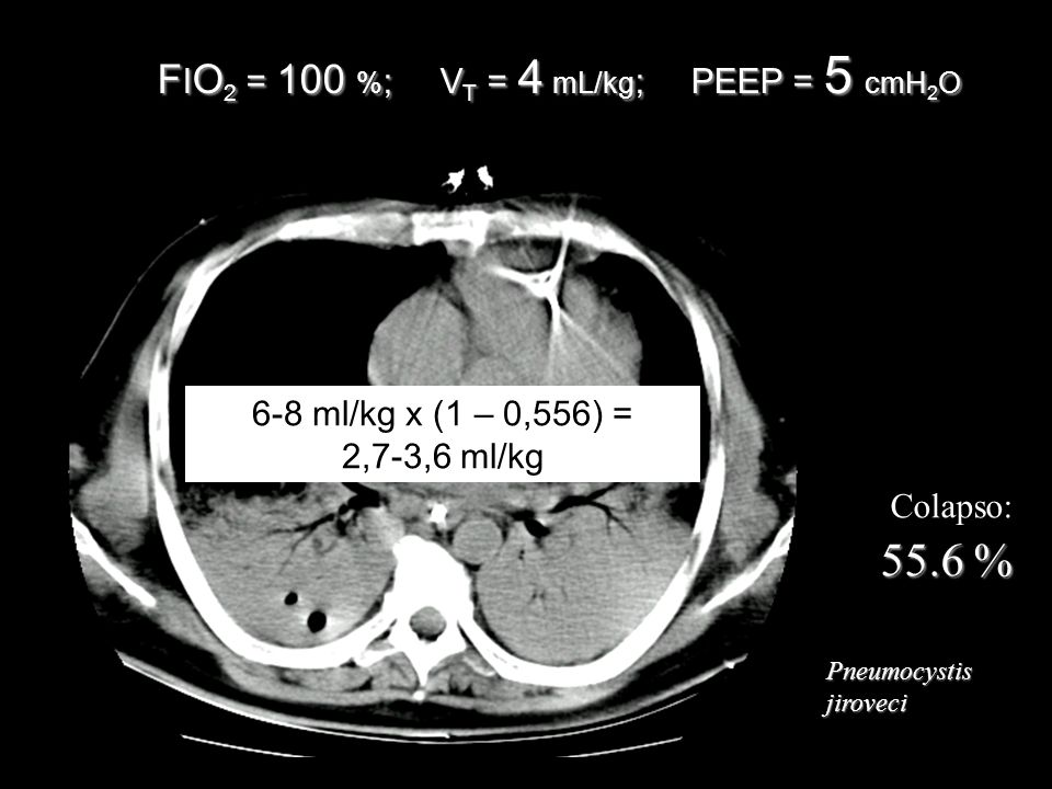 FIO2 = 100 %; VT = 4 mL/kg; PEEP = 5 cmH2O