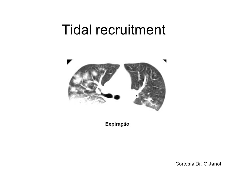 Tidal recruitment Expiração Cortesia Dr. G Janot