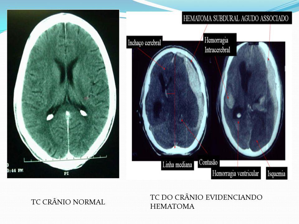 TC DO CRÂNIO EVIDENCIANDO HEMATOMA