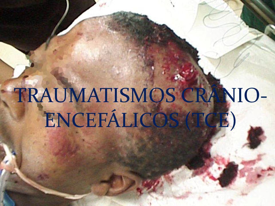 TRAUMATISMOS CRÂNIO-ENCEFÁLICOS (TCE)