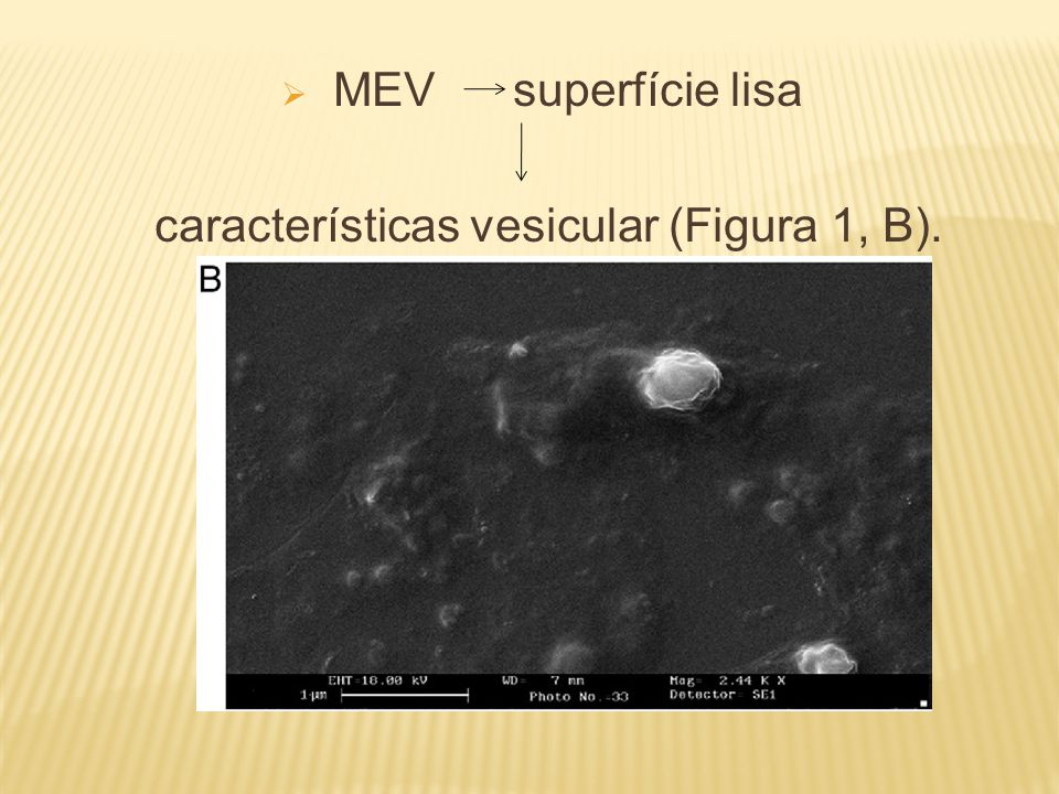 características vesicular (Figura 1, B).