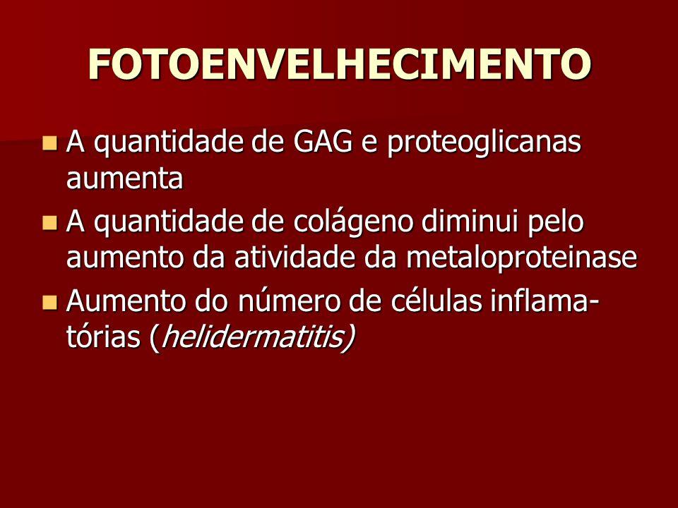 FOTOENVELHECIMENTO A quantidade de GAG e proteoglicanas aumenta